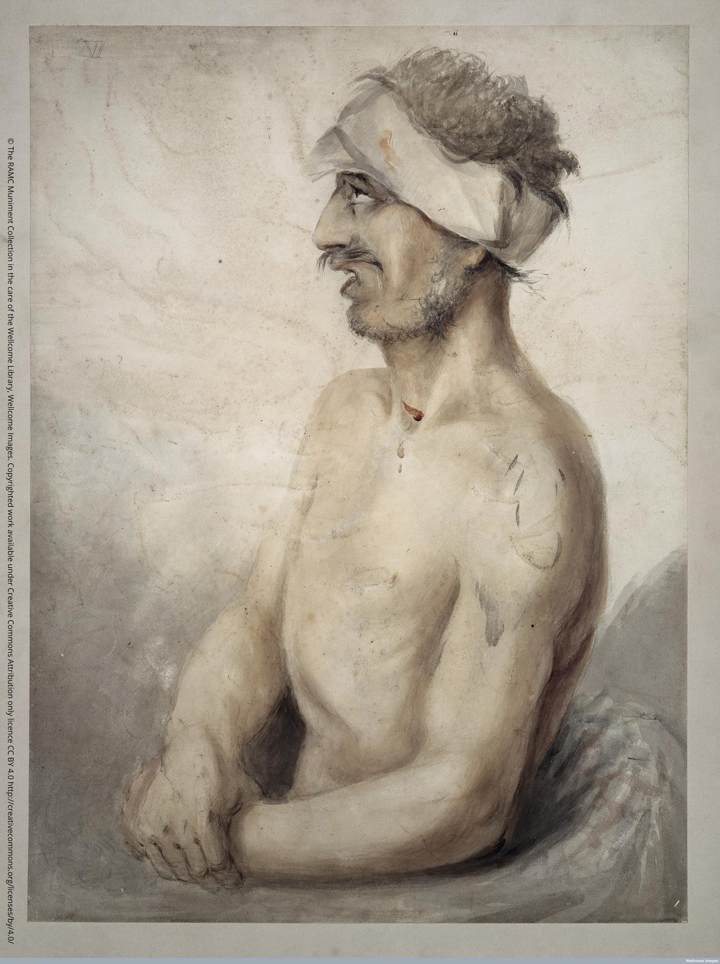 © The RAMC Muniment Collection in the care of the Wellcome Library, Wellcome Images Soldier with bandaged head, wounded at the battle of Waterloo.Watercolour 1815
