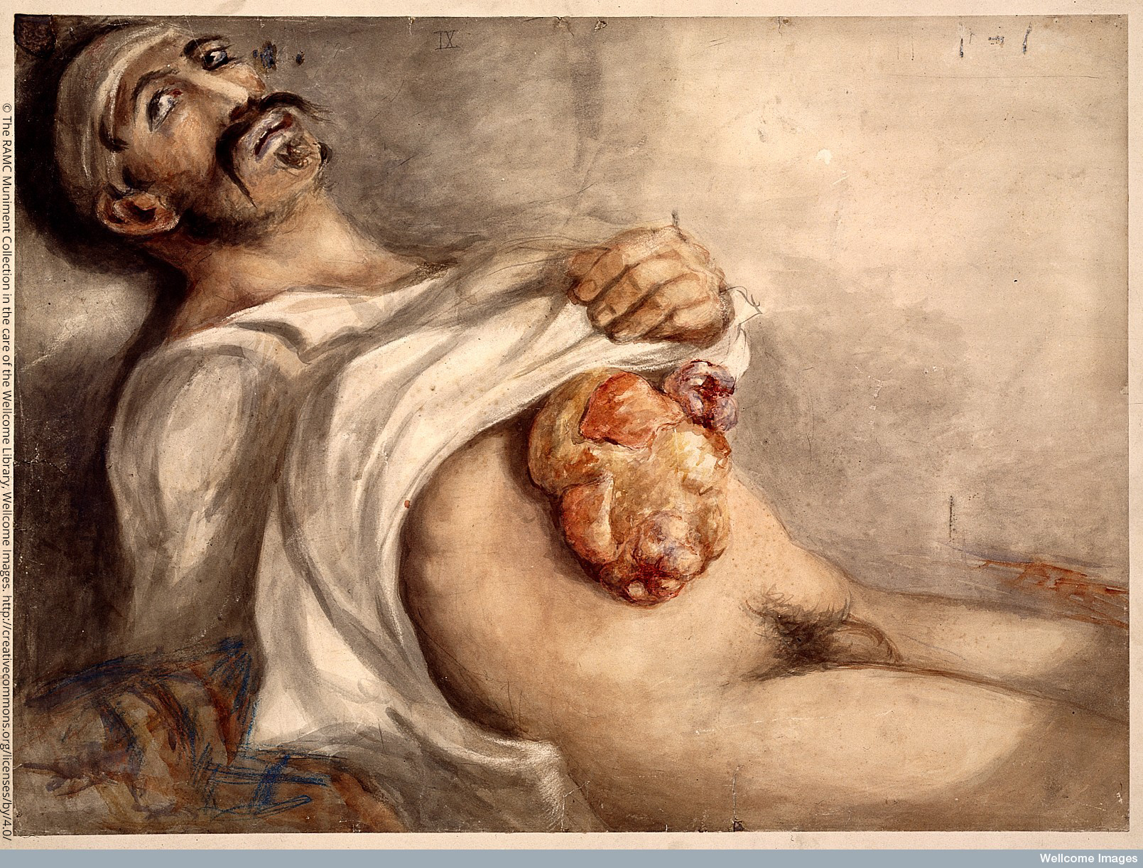 The RAMC Muniment Collection in the care of the Wellcome Library, Wellcome Images Soldier suffering from a stomach wound to abdomen. Wounded at the battle of Waterloo. Watercolour 1815