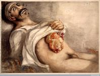 Thumbnail image of The RAMC Muniment Collection in the care of the Wellcome Library, Wellcome Images Soldier suffering from a stomach wound to abdomen. Wounded at the battle of Waterloo. Watercolour 1815