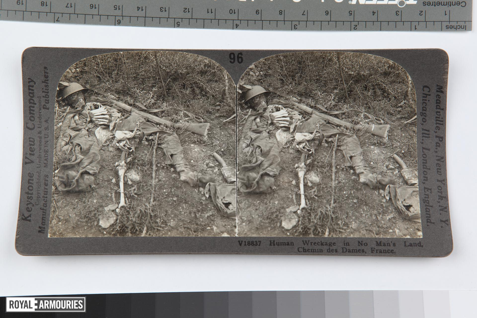 Stereoscopic photograph entitled '96. Human Wreckage in No Man's Land, Chemin des Dames, France', American, 1914-1919.